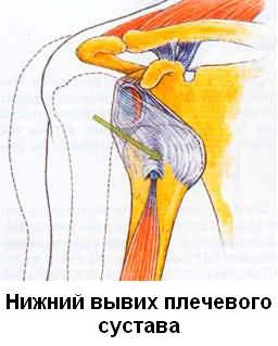 Привычный-вывих-плечевого-сустава